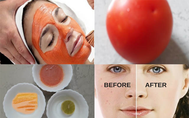 trị mụn trứng cá tuổi dậy thì bằng cà chua