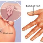 Hiểu về mụn cóc để điều trị bệnh dứt điểm nhanh